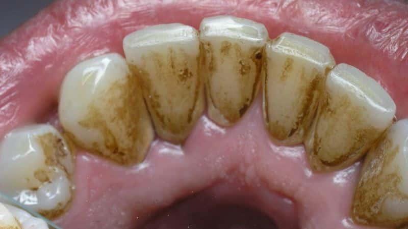 Почему чернеют зубы у детей и взрослых?