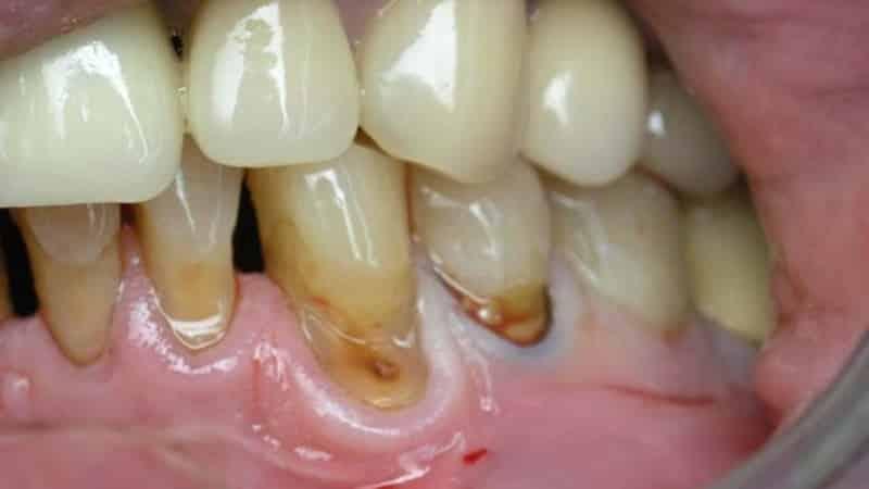 почему зубы чернеют изнутри