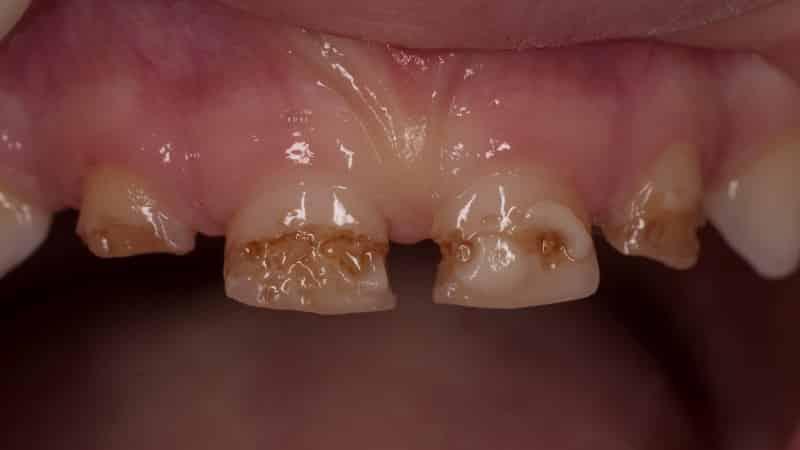 почему чернеют зубы у взрослых что делать