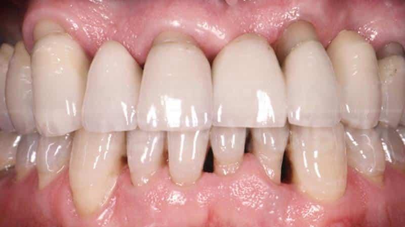 как полоскать рот перекисью водорода