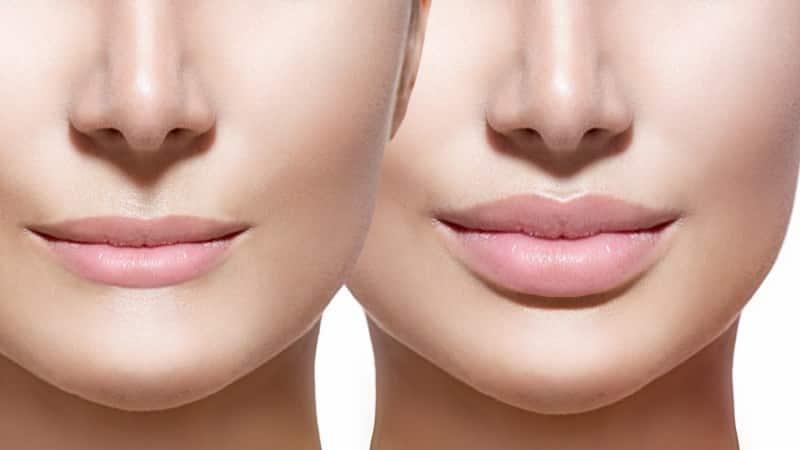 как снять отек после увеличения губ гиалуроновой кислотой