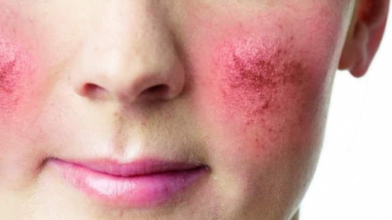 покраснение щек у взрослых причины