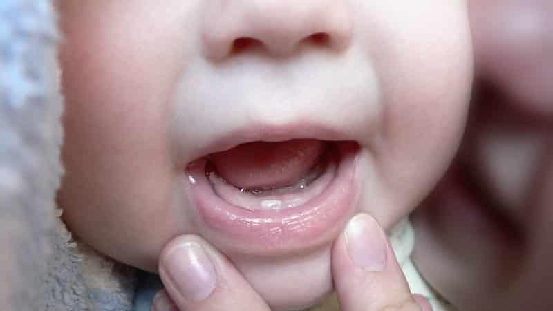 ребенку 9 месяцев нет зубов