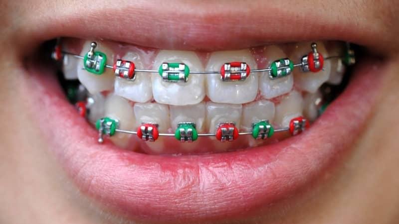 сколько носят брекеты на зубах взрослые