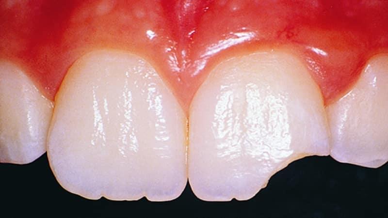 трещины на зубах что делать