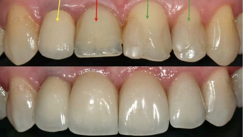 трещина в зубе чтоделать