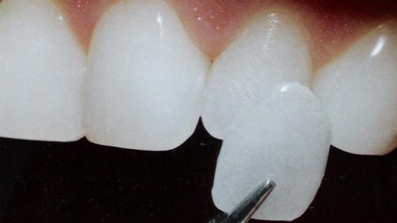 треснула эмаль на переднем зубе