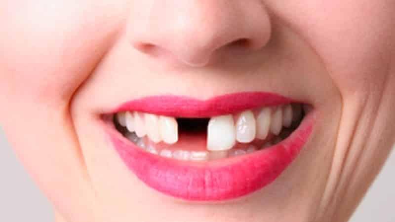 Зуб во сне дергать с кровью