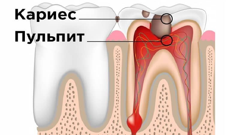 болезни зубов фото