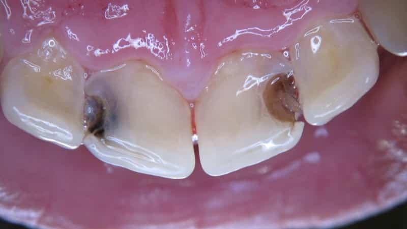 заболевания зубов фото