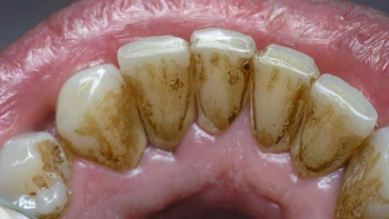 зубные болезни фото