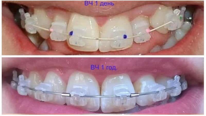 брекеты фото до и после неправильный прикус