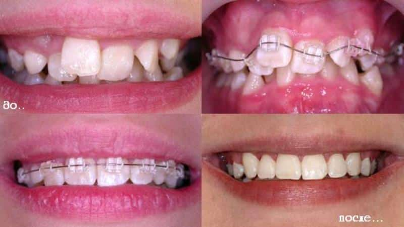 зубы до и после брекетов фото