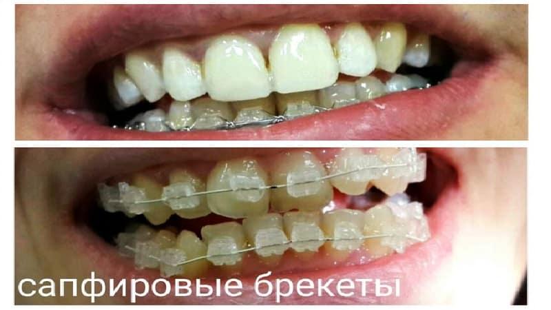 выравнивание зубов брекетами фото до и после