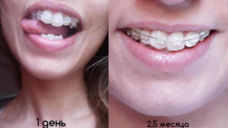 фото зубов до и после брекетов