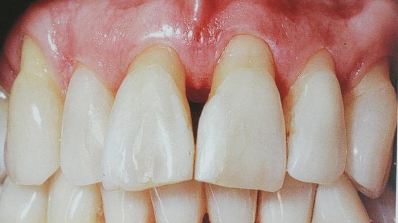 что делать если шатается коренной зуб