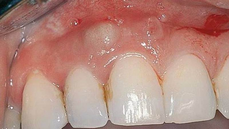 Абсцес зуба симптоми