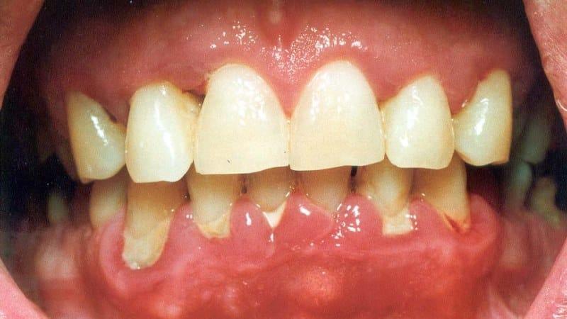 что делать если десна отходит от зуба как лечить