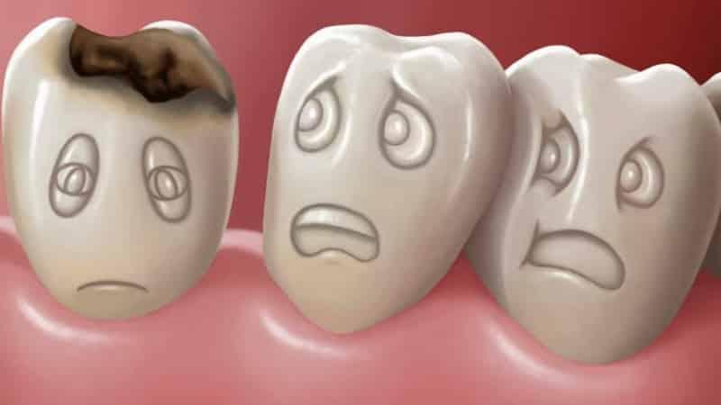 этиология и патогенез кариеса зубов