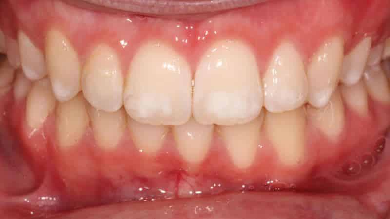 патогенез кариеса зубов