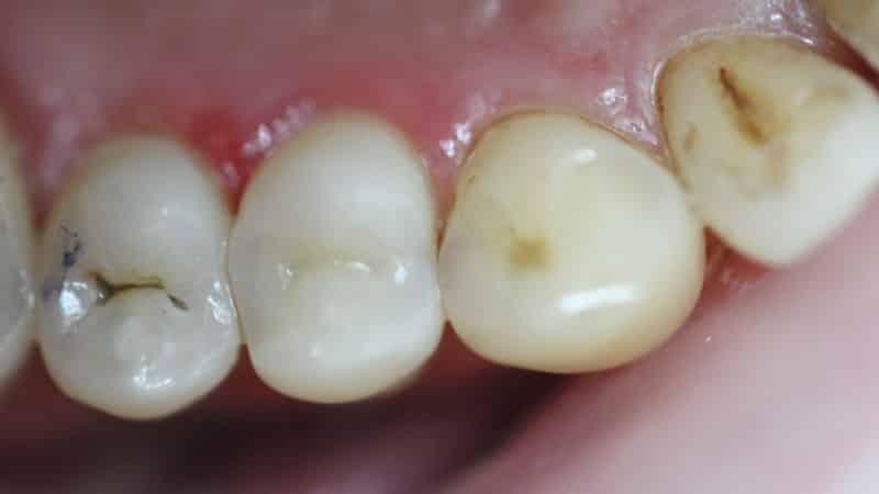 этиология кариеса зубов