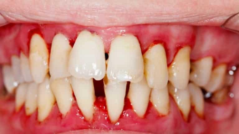 Чешутся зубы у беременных 18