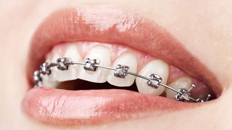 где бесплатно лечить зубы
