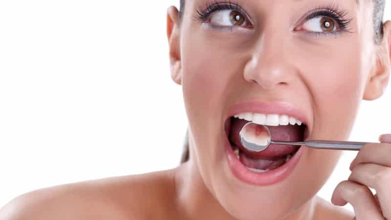 как узнать свой запах изо рта