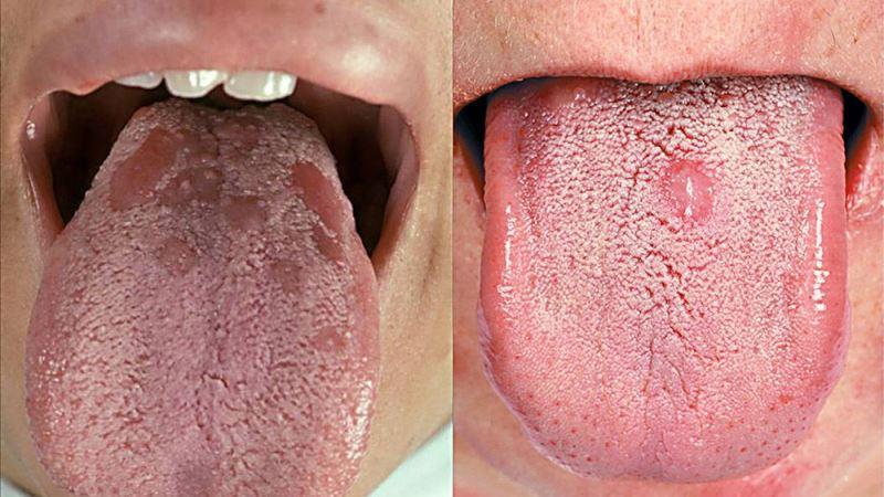 признаки вторичного сифилиса на языке