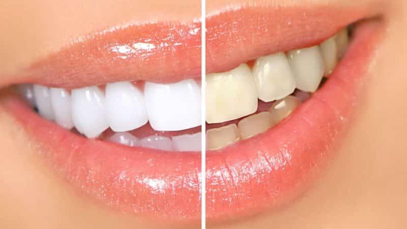 безопасно ли отбеливать зубы