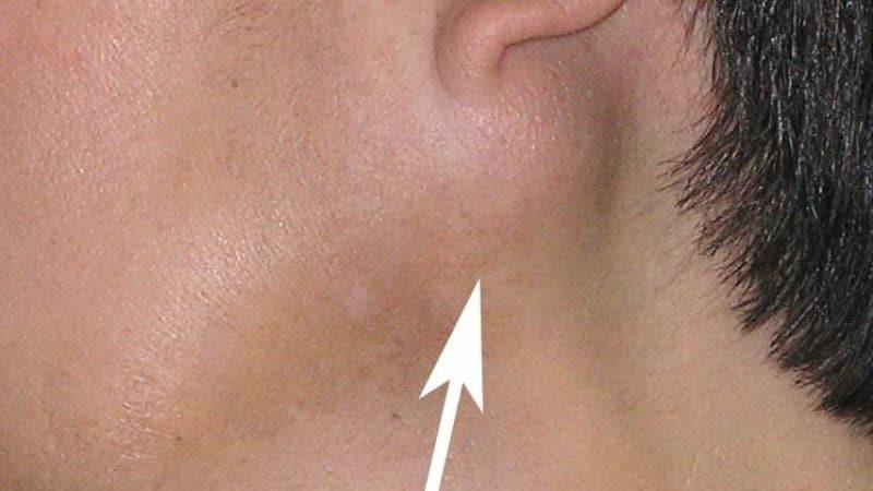 камни в слюнной железе лечение симптомы