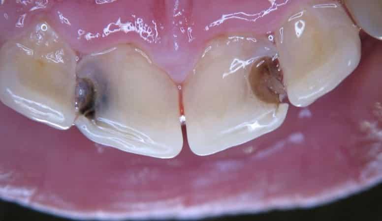 кариес на передних зубах что делать