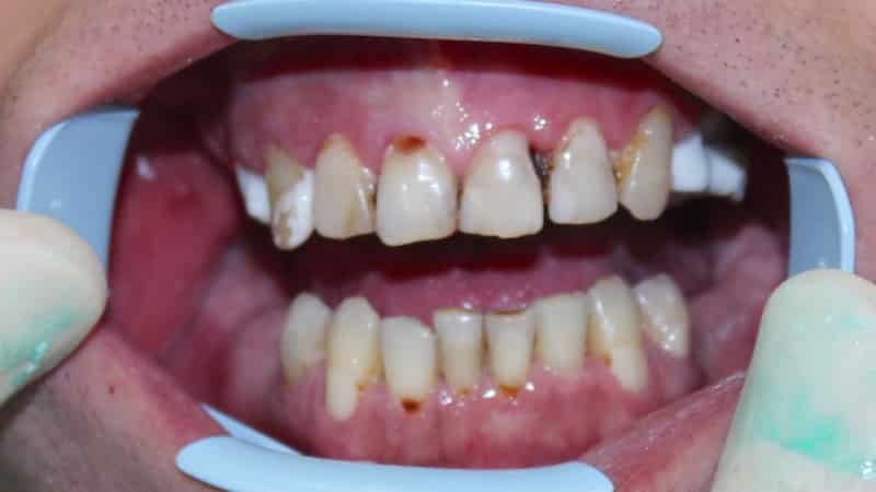 кариес передних зубов фото до и после