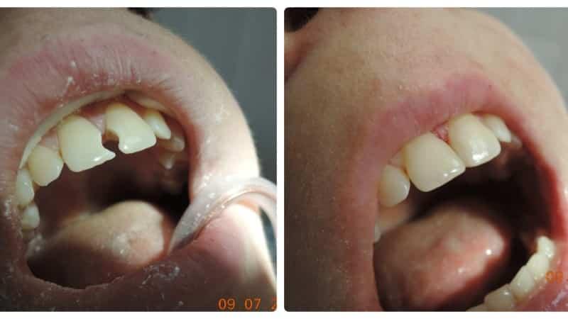 как лечат кариес на передних зубах фото
