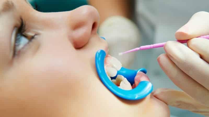 лечение передних верхних зубов