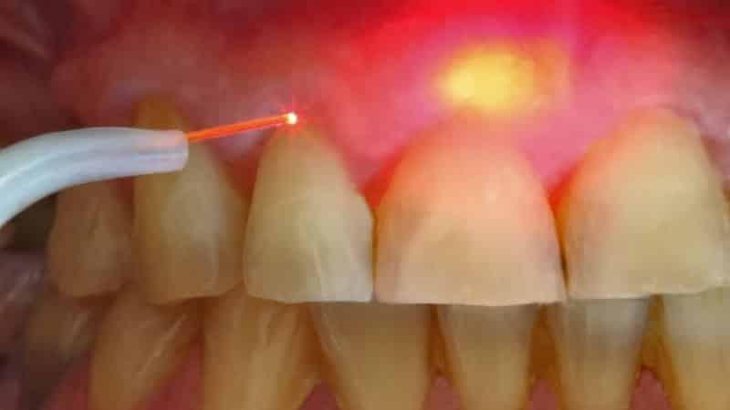 киста зубов верхней челюсти