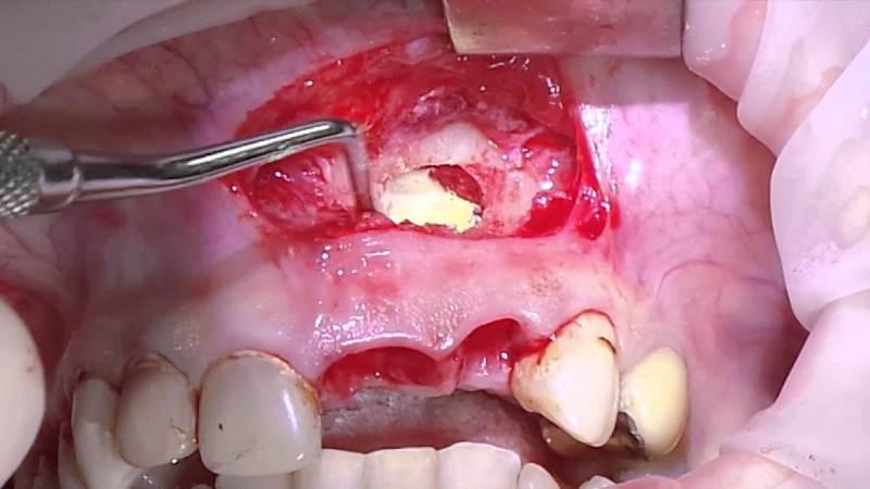 киста челюсти симптомы лечение