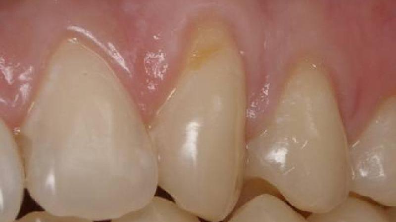 Наличие сопутствующих стоматологических болезней – одна из причин клиновидного дефекта зубов