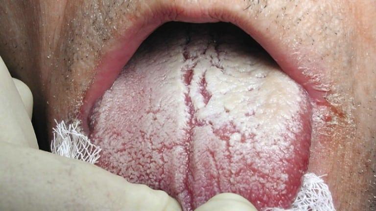 Кандидоз лечение: как и чем лечить симптомы заболевания