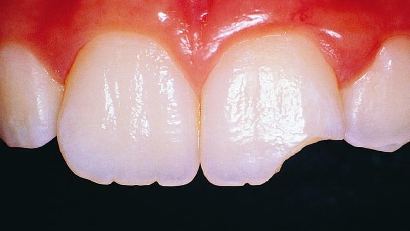 откололась эмаль зуба что делать