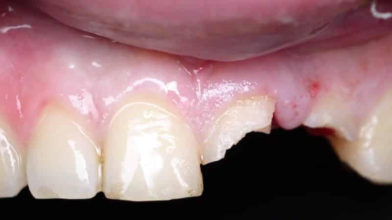 скол зуба что делать