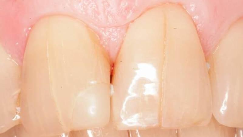 скол зуба способы лечения