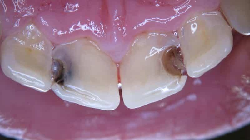 почему болят передник нижние зубы