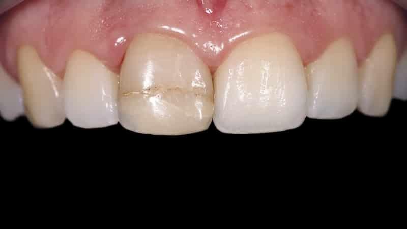 болит передний верхний зуб