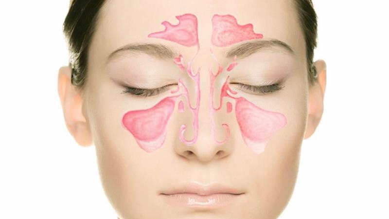 Гайморит – может стать причиной дискомфорта во всей челюсти