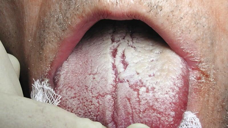 почему пахнет изо рта после сна