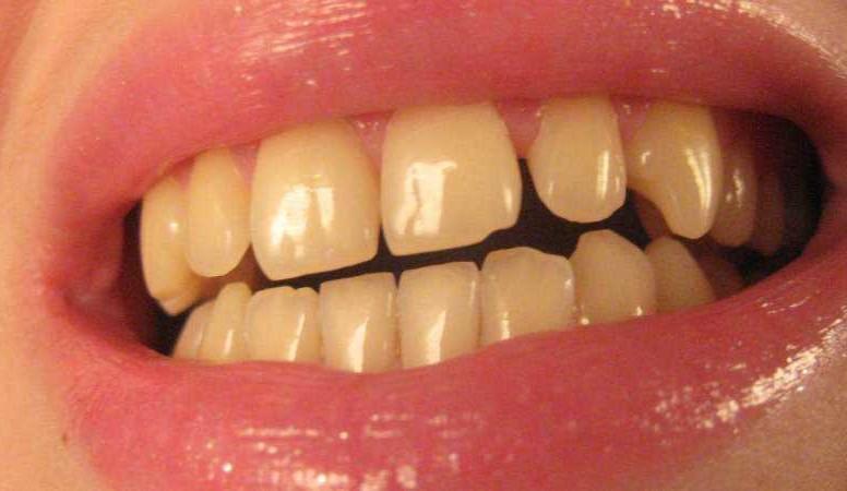 Средства для отбеливания зубов купить минск