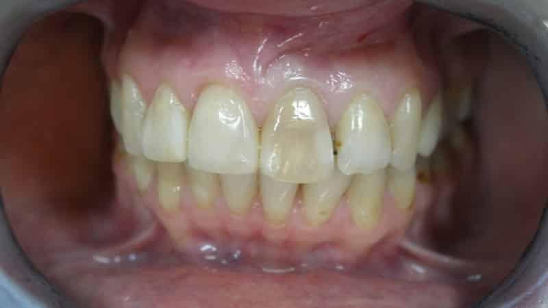 желтые зубы что делать