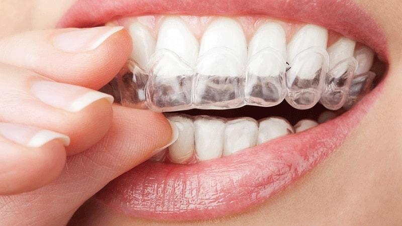 желтые зубы причины