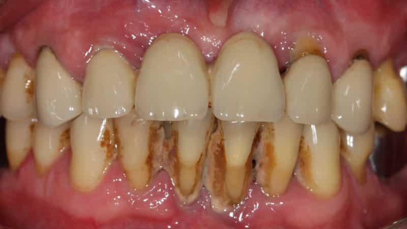 желтые зубы от сигарет
